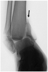 X-ray image showing Supination-Adduction (SAD)