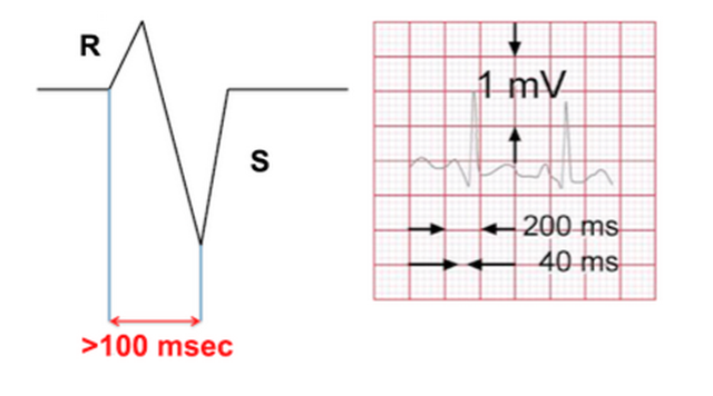 Example of how to measure the R-S interval