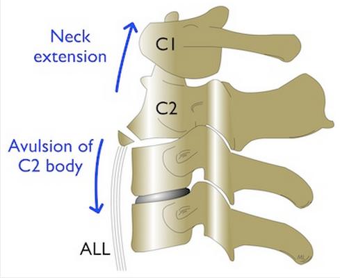 C1-C2 fracture diagram