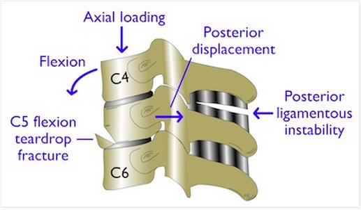 C3-C7 fracture diagram