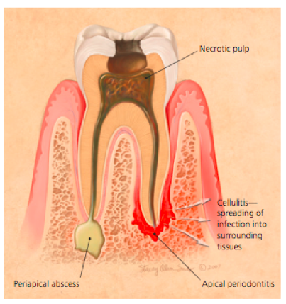 Cellulitis, necrotic pulp, and periapical abscess diagram
