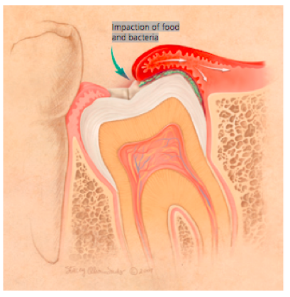 Impaction of food and bacteria diagram