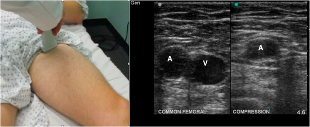 Transducer location to evaluate the femoral vein and normal ultrasound images showing common femoral artery and fully compressible vein