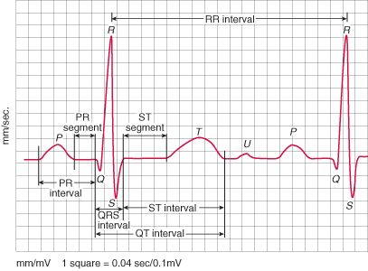 Normal ECG with overlay showing all the measurable intervals