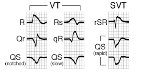 Example of VT vs SVT