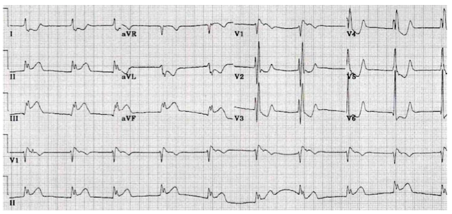 Example ECG showing an inferior wall MI