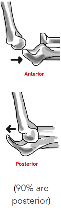 Anterior vs posterior elbow dislocation drawing. 90% are posterior