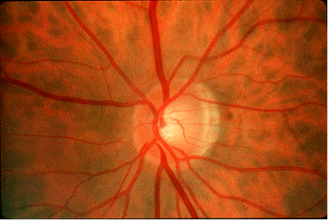 normal optic disc in optic neuritis photo