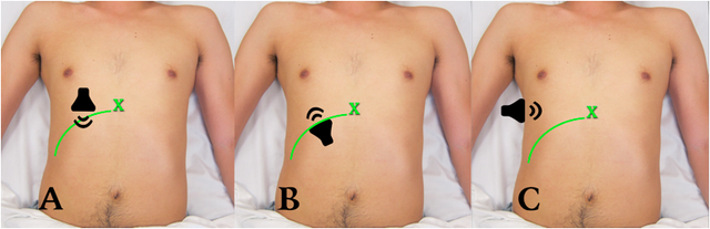 Transducer positions for gallbladder scan. A: Intercostal, B: Subcostal, C: Lateral. Green line = costal margin. X = xiphoid process