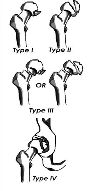 Types 1 to 4 femoral head fracture drawings