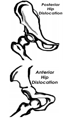 Posterior vs anterior hip dislocation drawing