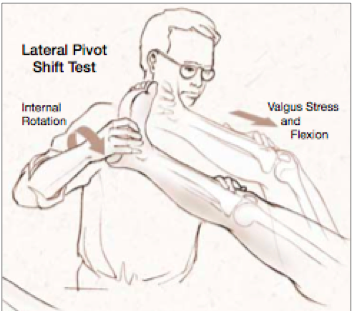 Lateral pivot shift test drawing