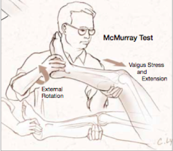 McMurray Test drawing