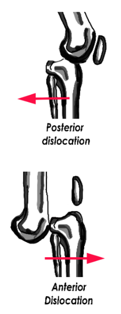Posterior vs anterior knee dislocation drawing