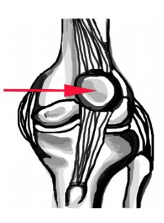 Patella dislocation drawing