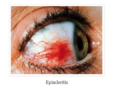 Episcleritis photo