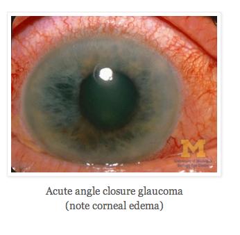 Acute Angle Closure Glaucoma photo