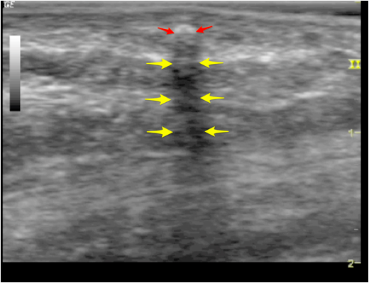 A subcutaneous wooden foreign body (red arrows) is identified with deep shadowing