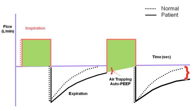 Diagram of auto-PEEP ventilator flow waveform
